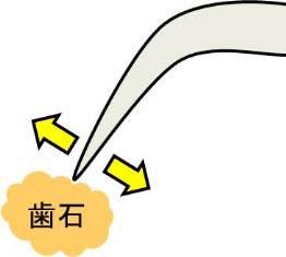 エアスケーラー.jpg
