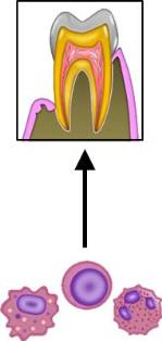 免疫細胞と歯周病.jpg