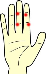 掌蹠膿疱症.jpg