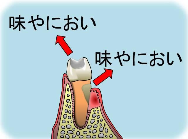 歯からの味.jpg