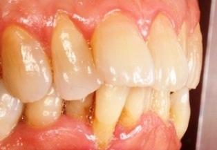 歯ぎしりと糸切り歯.jpg