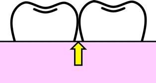 歯と歯の隙間.jpg