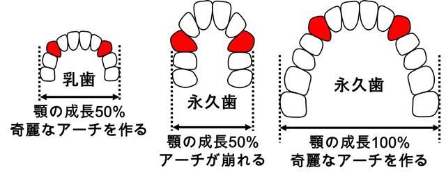 歯の並び.jpg