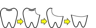 歯の寿命.jpg