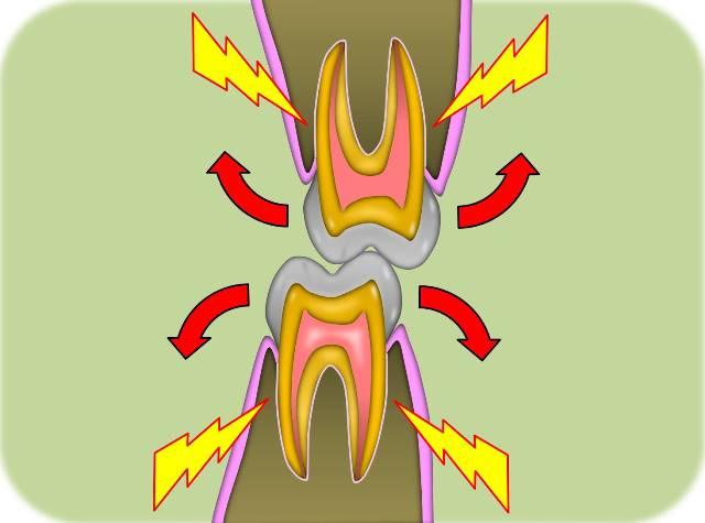 歯の捻挫.jpg