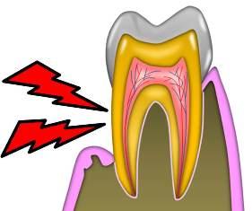 歯の神経.jpg