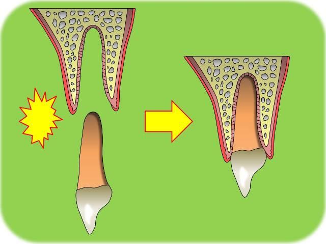歯の脱臼.jpg