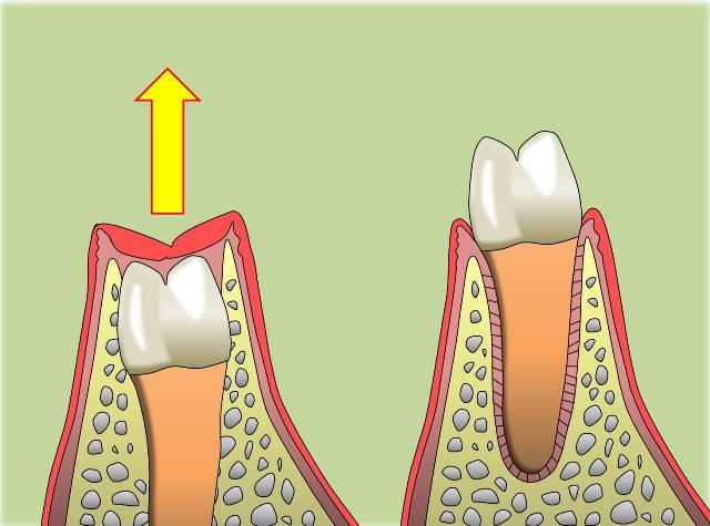 歯の萌出.jpg
