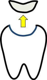 歯の詰め物.jpg