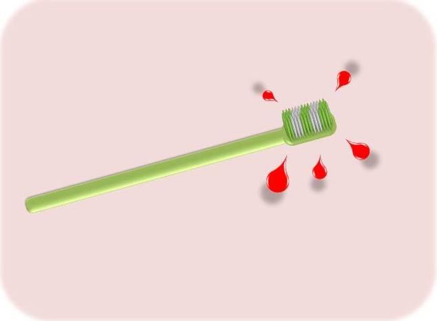 歯ブラシに血が付く.jpg