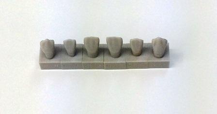 歯並び2.jpg