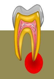 歯内治療の進化.jpg