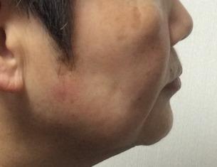 顎関節.jpg