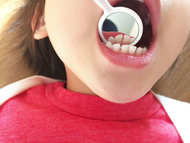 child dental treatment10 1.jpg
