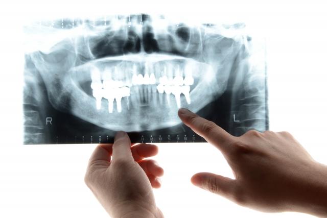 less tooth.jpg